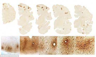 Phát hiện loại protein hỗ trợ chẩn đoán bệnh gây hại não mãn tính
