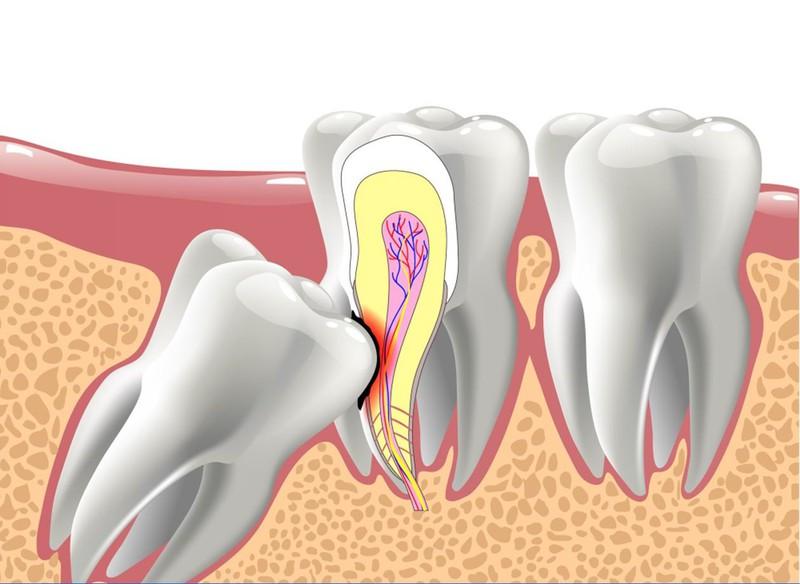 Răng khôn: Có nên nhổ hay không?
