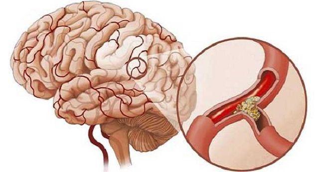 3 triệu chứng khó chịu khi ngủ cảnh báo bệnh nhồi máu não