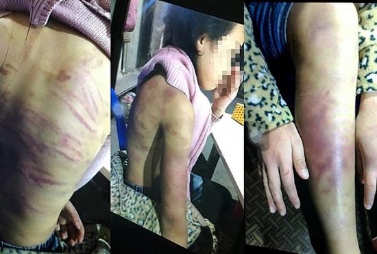 Vụ bé gái 12 tuổi bị bạo hành, xâm hại: Khởi tố mẹ đẻ và người tình