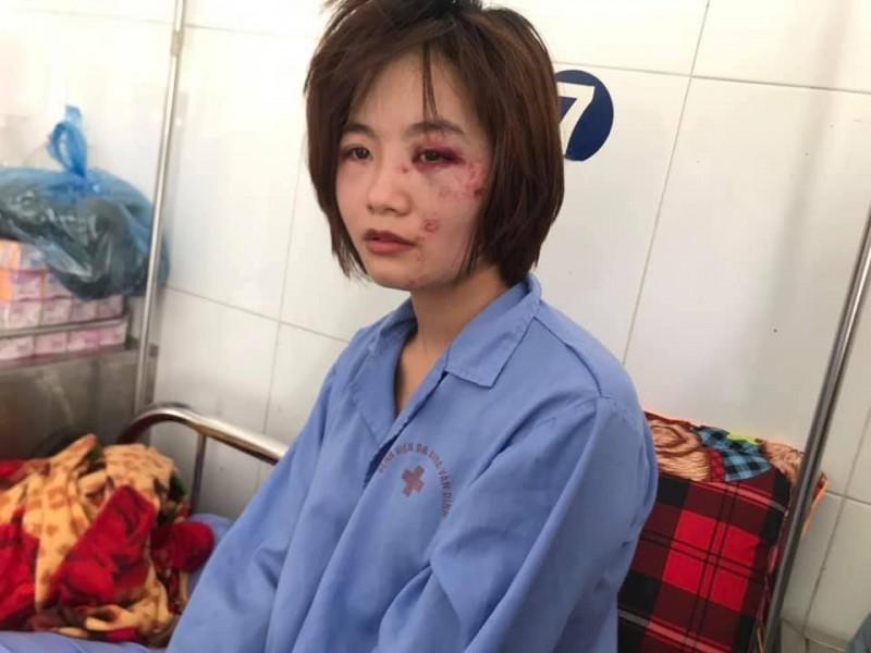 Truy nã 2 đối tượng hành hung nữ phụ xe buýt