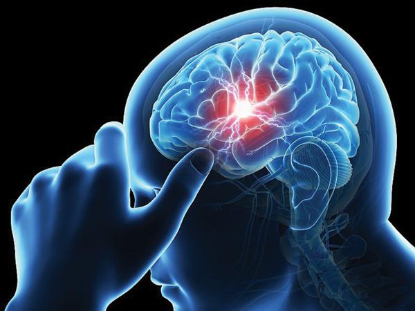 Chuyên gia cảnh báo: Không uống bất kỳ loại thuốc nào khi nghi ngờ đột quỵ