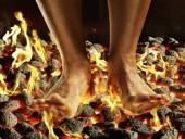 9 biện pháp khắc phục các triệu chứng đau bàn chân