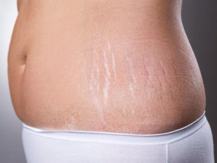 Mẹo xóa tan các vết rạn da hiệu quả tại nhà