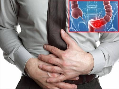 Chữa viêm đại tràng bằng 3 bài thuốc dân gian dễ như trở bàn tay