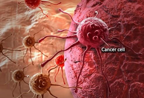 Góc nhìn mới về nguyên nhân gây ra căn bệnh ung thư quái ác
