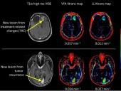 Tìm ra phương pháp mới chữa u não mà không cần phẫu thuật