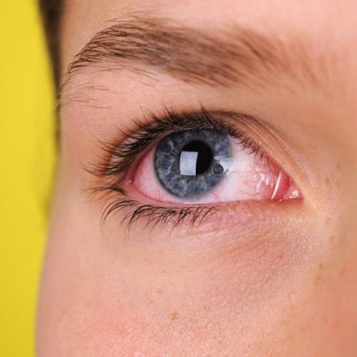 Những triệu chứng báo hiệu bạn có vấn đề nghiêm trọng về sức khỏe