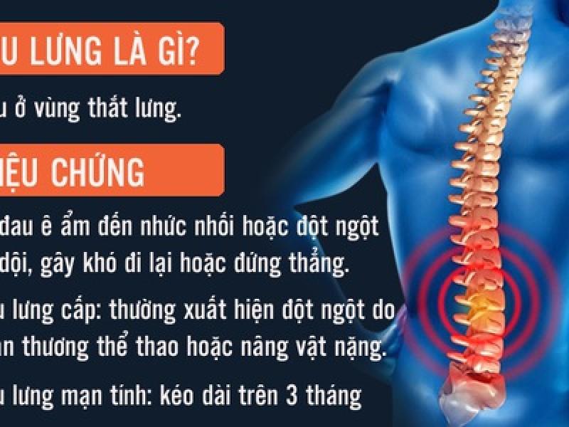 Mọi điều cần biết về đau lưng