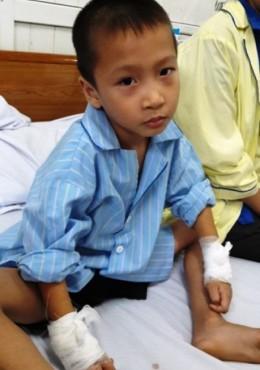 Vụ mổ nhầm tay trẻ 6 tuổi: Thành lập hội đồng chuyên môn và kỷ luật