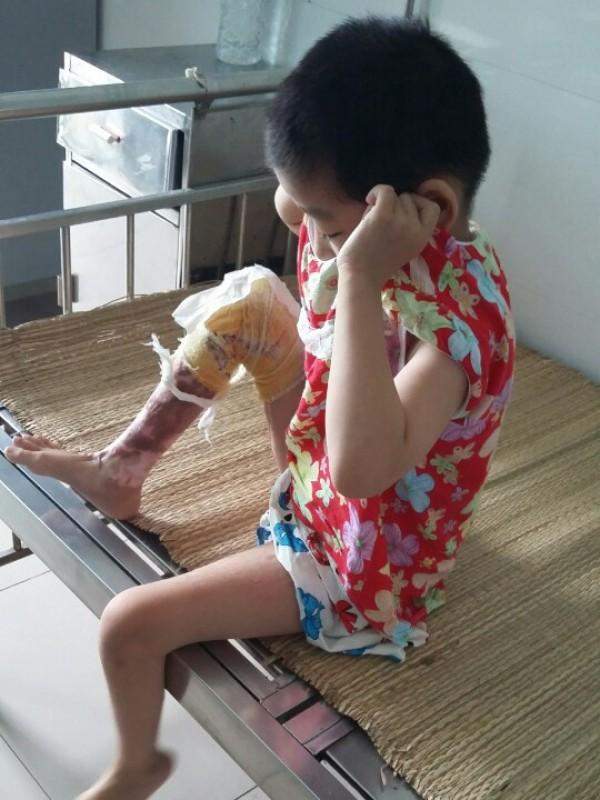 Tự chữa bỏng tại nhà: Nguy hiểm khôn lường!