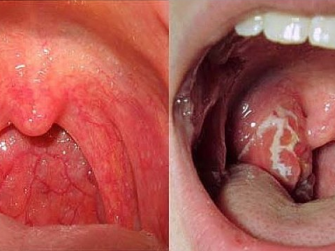 Xác định 'thủ phạm' hàng đầu khiến nhiều người mắc ung thư vòm họng