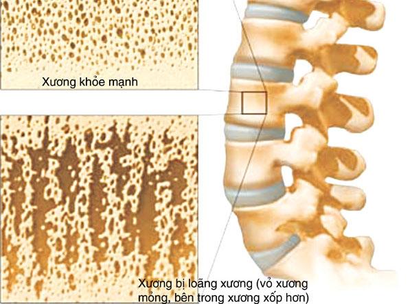 Loãng xương   căn bệnh nguy hiểm với người cao tuổi