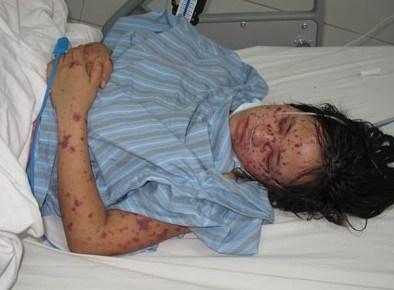 Bệnh viêm não mô cầu cực nguy hiểm lại xuất hiện ở Hà Nội