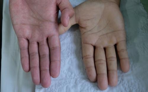 7 dấu hiệu nhận biết bệnh thiếu máu và 7 cách điều trị tự nhiên