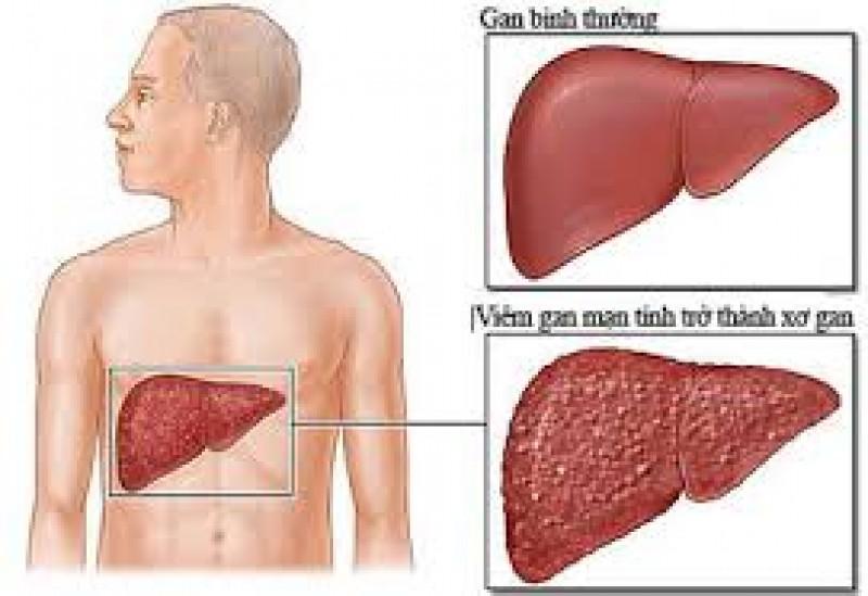 Đột phá mới trong phát hiện nguy cơ ung thư gan, xơ gan sớm