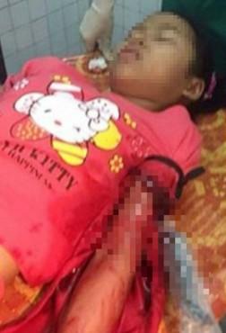 Hai đối tượng bịt mặt đâm trọng thương nữ sinh lớp 7 đã 'sa lưới'